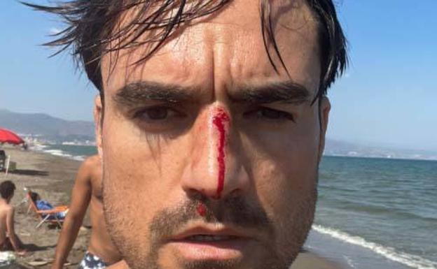 Un joven sufre una agresión homófoba en una playa canina de Málaga. (Foto: diario SUR)
